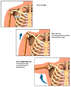 Normal Movement of the Shoulder