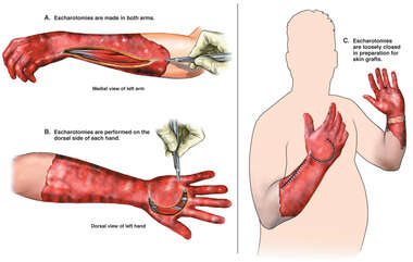 Bilateral Escharotomies of the Arms