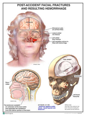 Female Facial Portrait with Orbital Injuries and Subsequent Brain Injury