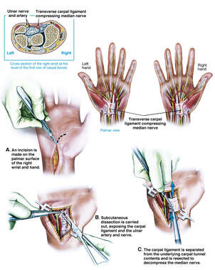 Bilateral Carpal Tunnel Syndrome and Surgical Repair