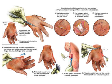 Contracture Deformity of the Right Hand with Surgical Repairs
