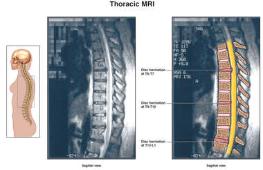 MRI of Thoracic Spine Injuries