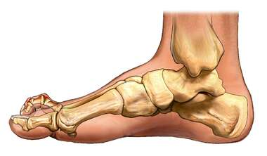 Claw Toe: Medial View of the Foot