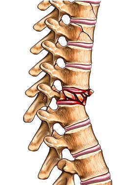 Spine Injury - Vertebral Compression Fracture