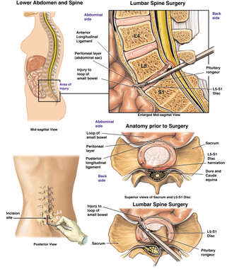 L5-S1 Discectomy Procedure with Injury to the Bowel