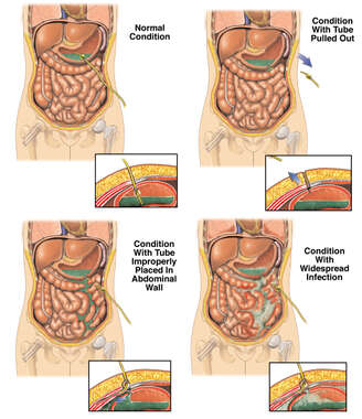 Improper Placement of Gastrostomy Tube with Subsequent Abdominal Infection