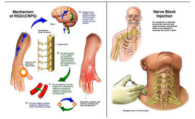 Mechanism of RSD/CRPS with Nerve Block