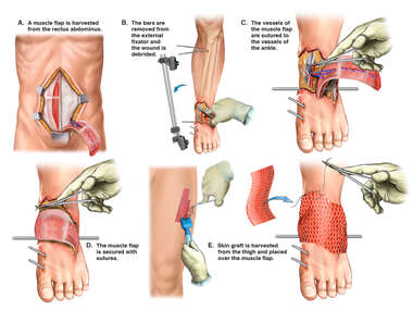 Surgical Reconstruction of Left Ankle Wound
