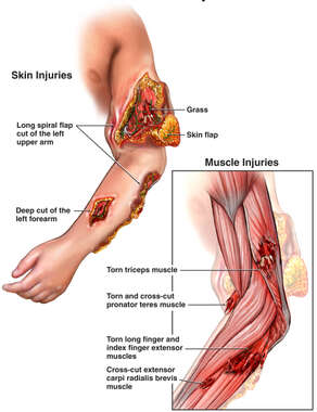 Traumatic Skin and Muscle Injuries of the Left Arm