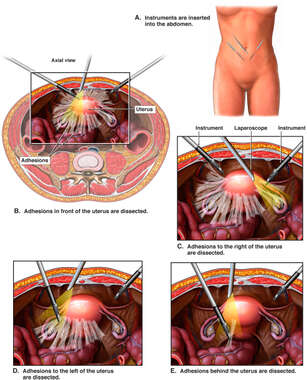 Lysis of Adhesions During Laparoscopic Assisted Vaginal Hysterectomy