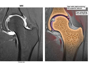 Tear Involving Superior Labrum of the Left Hip