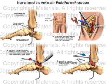 Non-union of the Ankle with Redo Fusion Procedure