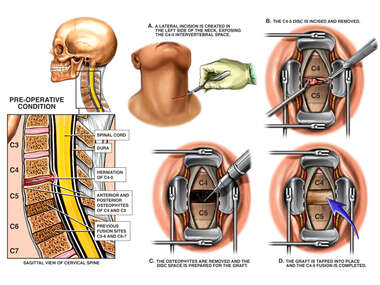 Cervical Disc Herniation with Surgical Repair