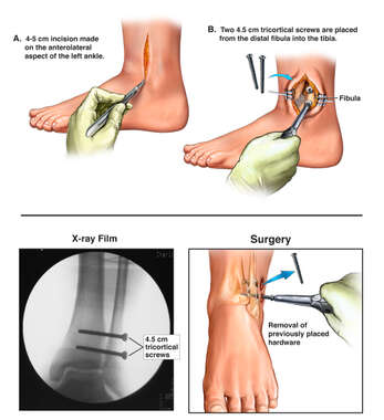 Surgical Fixation of the Left Ankle and Hardware Removal