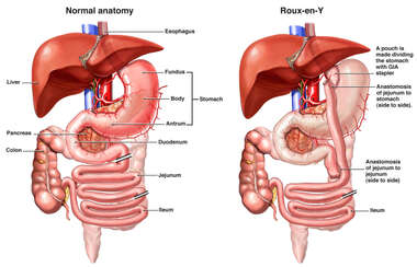 Normal Abdominal Anatomy vs. Roux-en-Y Gastric Bypass