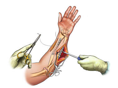 Internal Fixation of Forearm