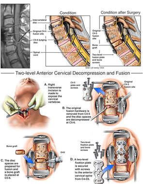 Additional Cervical Disc Injury with Extension of Cervical Fusion