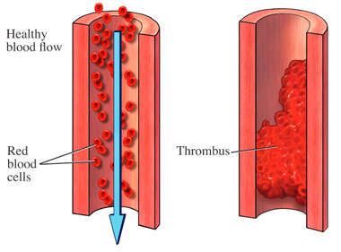 Healthy Blood Flow and Thrombus