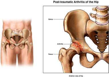Post-traumatic Arthritis of the Right Hip
