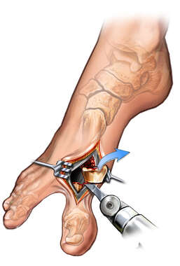 Bunion Resection