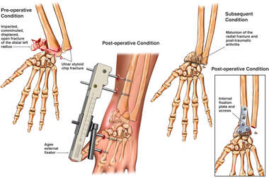 Wrist Fracture with Post-traumatic Arthritis