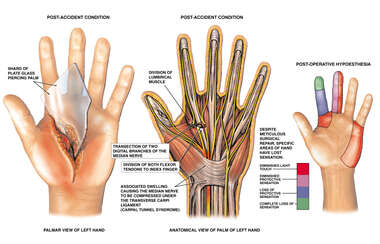 Post-accident Hand Injuries and Loss of Sensation