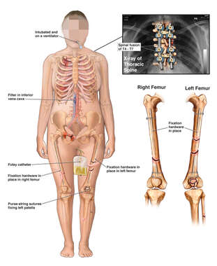 Female Figure with Post-operative Conditions of Spine and Legs Bilaterally