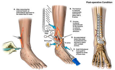 Right Ankle Open Reduction and Internal Fixation