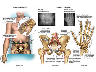 Hand and Pelvis Fracture Repairs