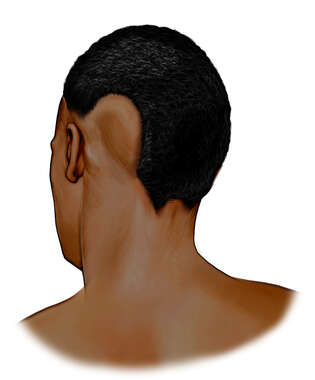 Posterolateral View of the Neck