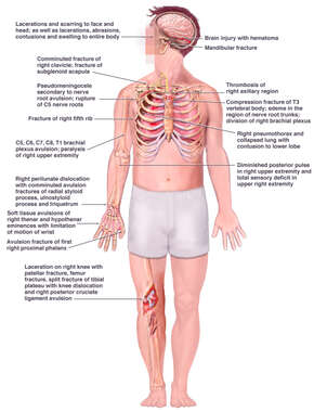 Injuries to the Brain, Chest, Arm and Leg