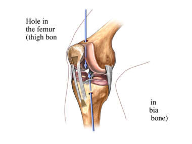 Placement of Bone Holes