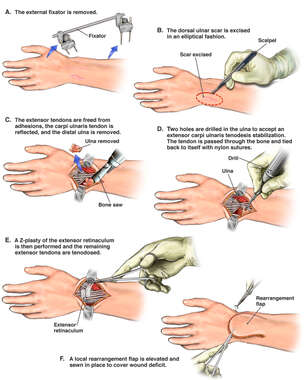 Additional Soft Tissue Repairs to the Left Dorsal Wrist
