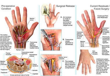 Right Carpal Tunnel Syndrome with Surgical Release and Post-operative Scarring