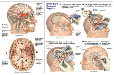 Traumatic Brain Injuries with Immediate Craniotomy and Removal of Brain Tissue and Blood Clot