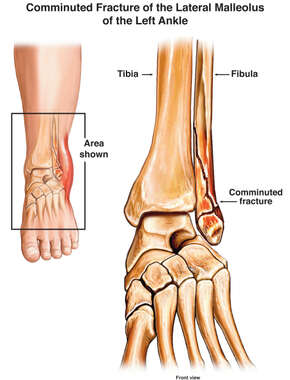 Comminuted Fracture of the Lateral Malleolus of the Left Ankle