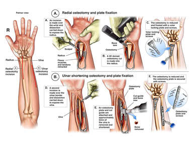 Radial and Ulnar Osteotomies