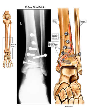 Surgical Fixation of the Left Ankle