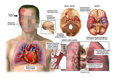 Traumatic Head and Chest Injuries
