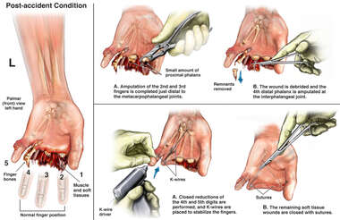 Crush Injury of the Left Hand and Surgical Repair