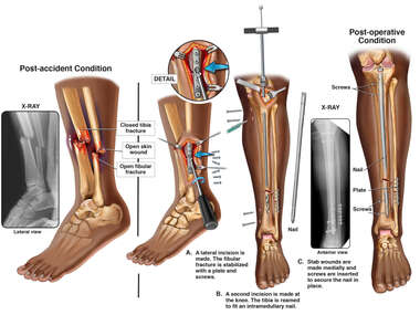 Left Leg Fractures with Surgical Procedure