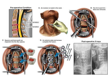 C3-4 and C4-5 Disc Herniations with Double-Level Anterior Cervical Discectomy and Fusion