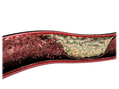 Plaque Formation within a Artery