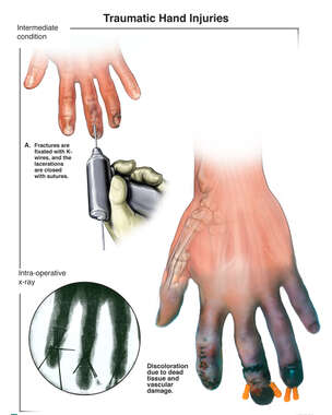 Finger Fracture Fixation