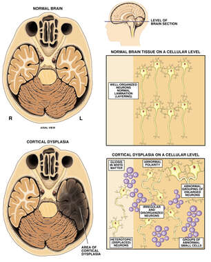 Cortical Dysplasia of the Left Temporal Lobe