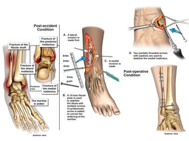 Right Ankle Trimalleolar Fracture with Surgical Fixation