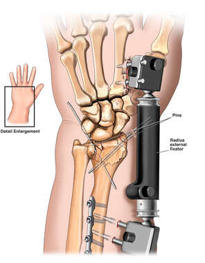 Wrist Fracture with Surgical Fixation