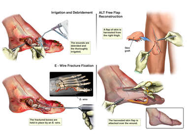 Ex 2 Fracture Fixation and Surgical Debridement and Free Flap Reconstruction of the Open Wound