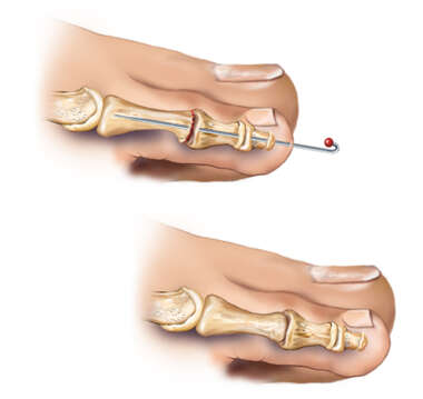 Hammer Toe: Post-surgical Condition