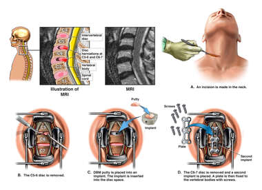 Cervical Disc Herniations with Double Level Discectomy and Fusion Surgery